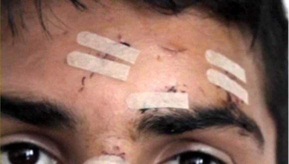 Άγριος ξυλοδαρμός 20χρονου Σύρου στην πλατεία Αττικής