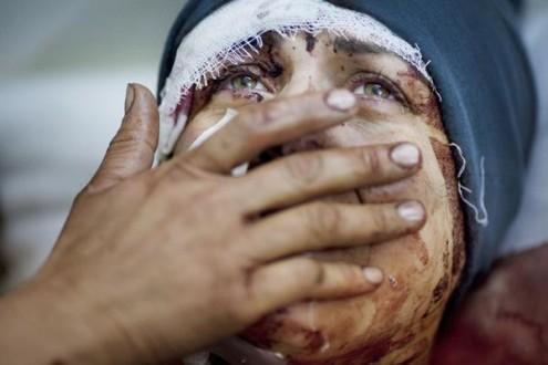 Σοκ για τις θηριωδίες με χημικά στη Συρία