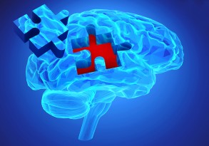 Dementia Disease And A Loss Of Brain Function And Memories