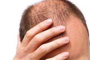 «Παράδεισος» για τη μεταμόσχευση μαλλιών η Κωνσταντινούπολη 46272f5473f